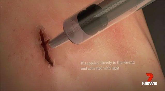 澳洲医学震惊世界:最新型胶水可60秒闭合伤口,无需缝针,在紧急情况下挽救生命-澳洲唐人街